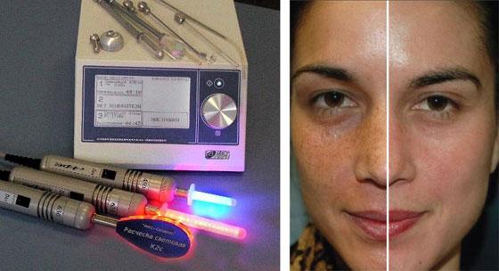 Лазерный пилинг это процедура