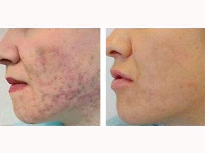 химический пилинг лица - до и после