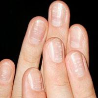 Грибок ногтей лечение народными средствами детям