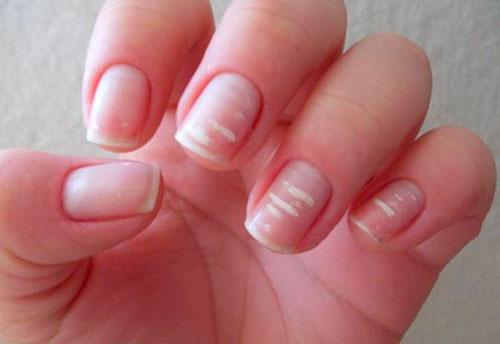 От чего на ногтях появляются белые пятна