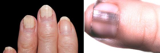 Приметы на ногтях белые точки