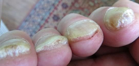 Российский лак от грибка ногтей на ногах