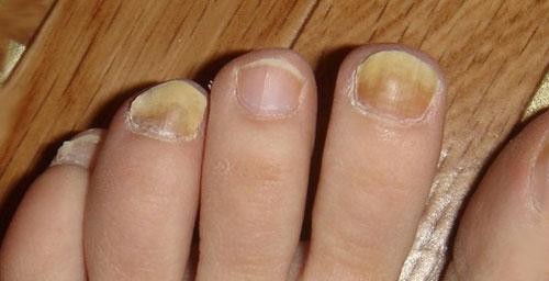 деформация ногтей ног из-за неудобной обуви