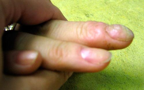 ребристость ногтя после наращивания