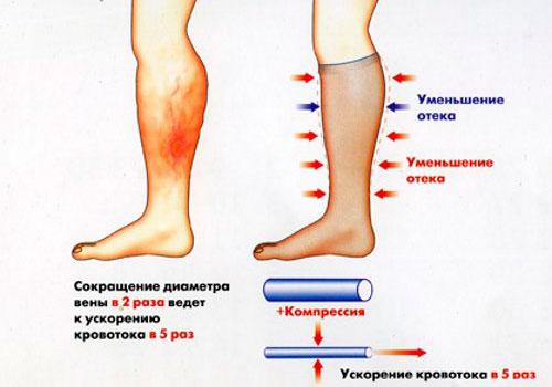 Воспалении десны под съемным протезом как лечить