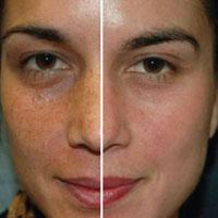 Как действует лазерный пилинг лица