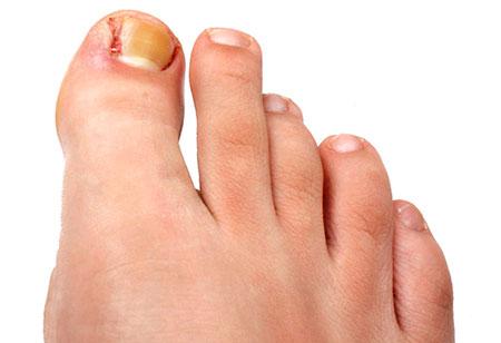 Нарывает палец на ноге возле ногтя: способы лечение